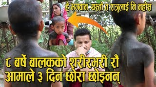 दाङका ८ बर्षे बालकको जिउभरी भैंसी, बाख्राको जस्तो रौं नै रौं | Diwash Rawat Sad Video