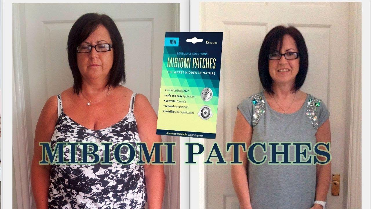 Mibiomi Patches – összetevők, ár. Milyen gyorsan vette észre a hatást? – Oszintemosoly