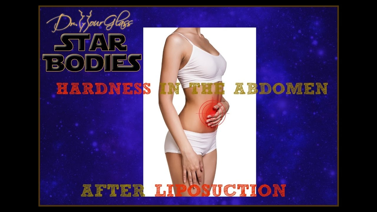 Hardness After Liposuction Dr Hourglass Houston Dallas Austin