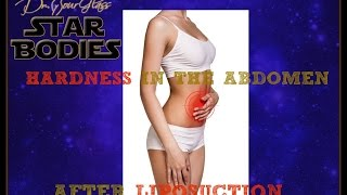 Hardness after liposuction |  Houston, Dallas, Austin, San Antonio