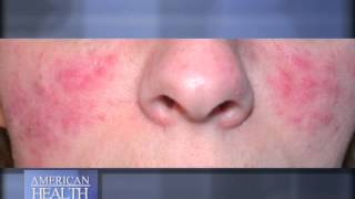 What is Rosacea Video Thumbnail