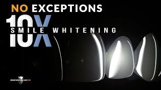 How To Whiten Your Teeth at Home! Extremely White! No Exceptions!