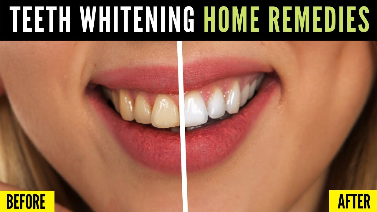 Home Remedies For Teeth Whitening All Natural 100 Works Youtube