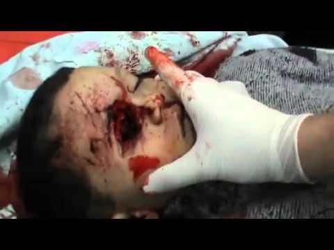 شام حمص   باباعمرو  قتيبة صابر رصاصة في عينه   مرعب جدا +18 7 1 2012
