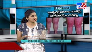 Varicose Veins : Homeopathic treatment || Life Line - TV9