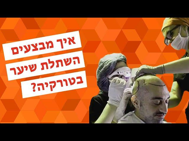 השתלת שיער בטורקיה - טיפולי שיער ברמה הגבוהה בעולם