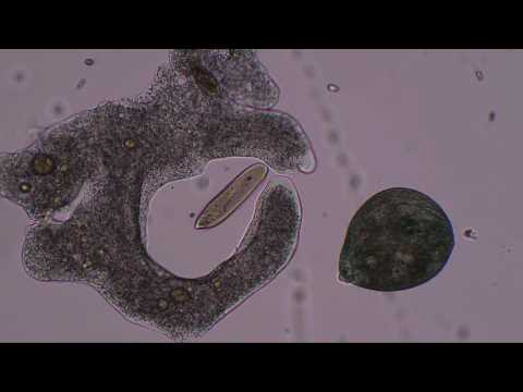 Amoeba hunts and kills paramecia and stentor... to music by Lamar; Genesis; Winter; Zimmer