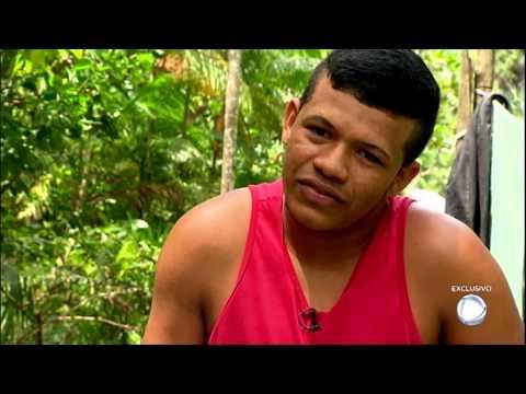 Câmera Record Mostra Rotina De Jovem Que Perdeu A Perna Em Olaria