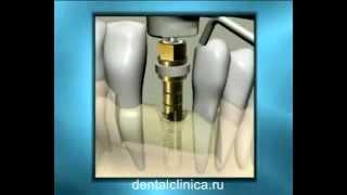 Лечение зубов имплантация hi-tech в Москве Санкт-Петербурге протезирование стоматология(, 2014-03-29T14:31:30.000Z)