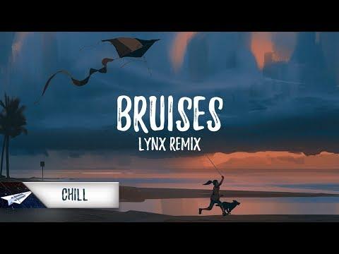 Lewis Capaldi - Bruises (Lynx Remix)