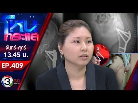 หญิงร้องเรียน หกล้ม หมอผ่าตัดสะโพกเคลื่อน เสี่ยงเป็นอัมพาต - วันที่ 08 Mar 2019