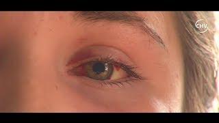 Joven acusa que hombre intentó sacarle los ojos durante agresión | CHV NOTICIAS