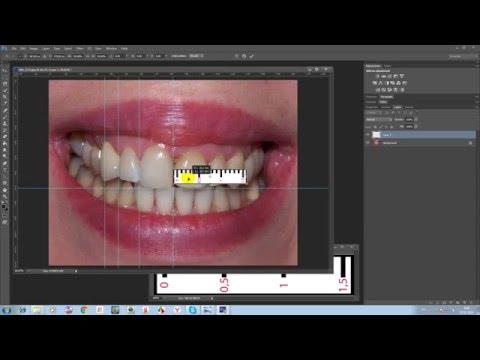 Digital Smile Design по-русски - часть 1