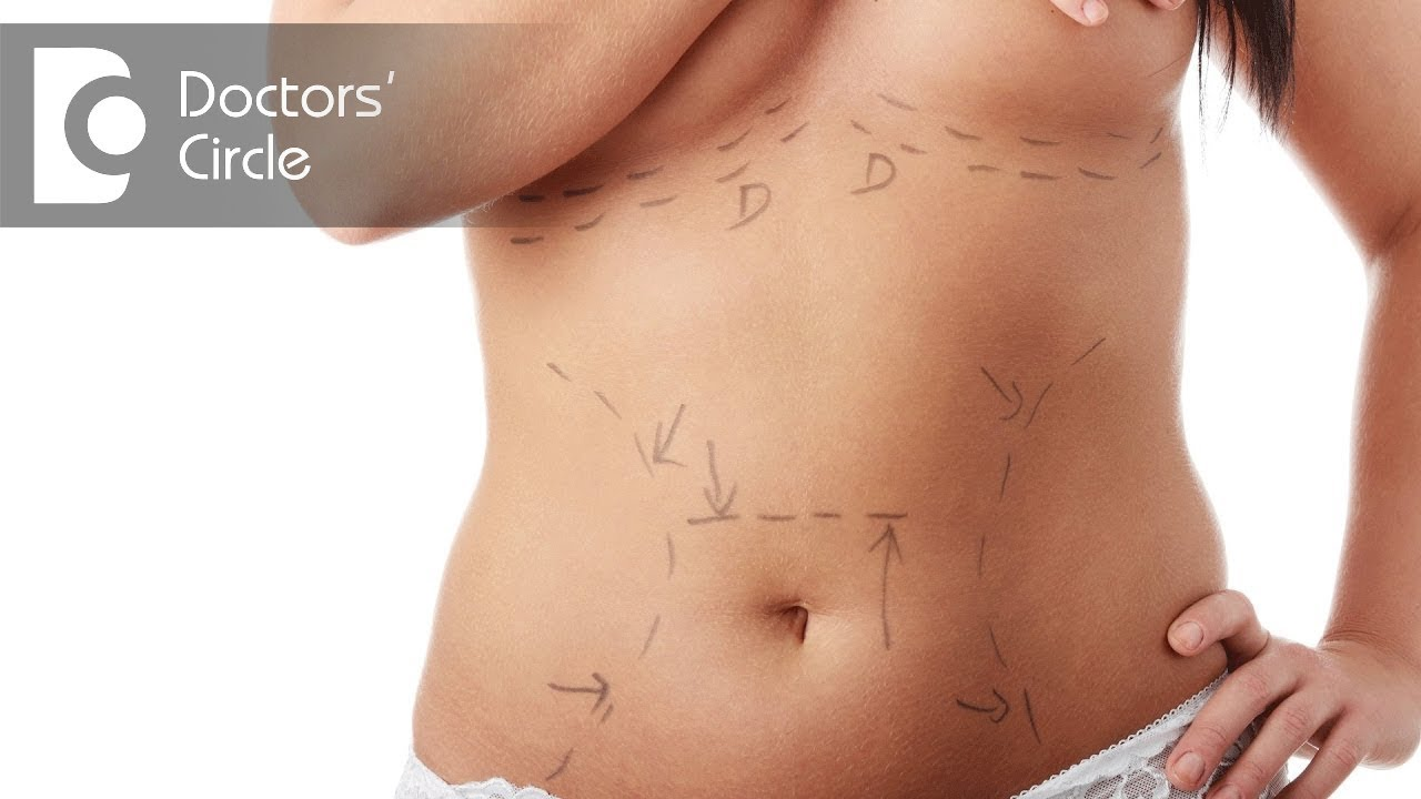 What is the post care after Liposuction? - Dr  Girish A C