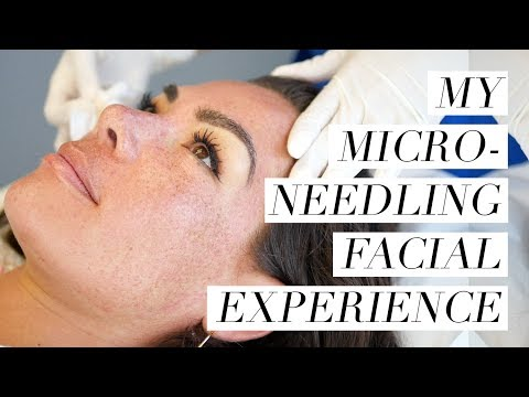 My Microneedling Experience