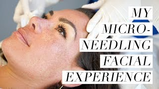 My Microneedling Facial Experience