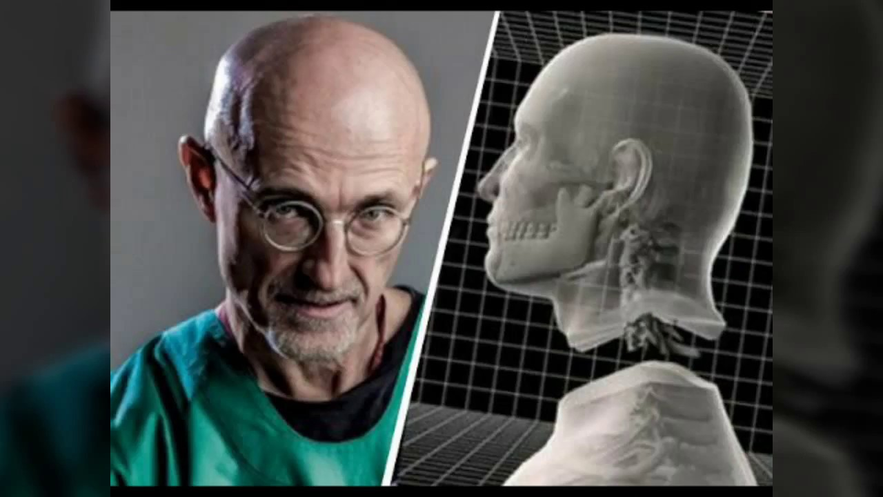 Image result for Sergio Canavero