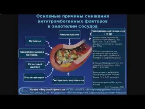 Чехова Т.А. Вопросы диагностики, прогноза и лечения окклюзий вен сетчатки