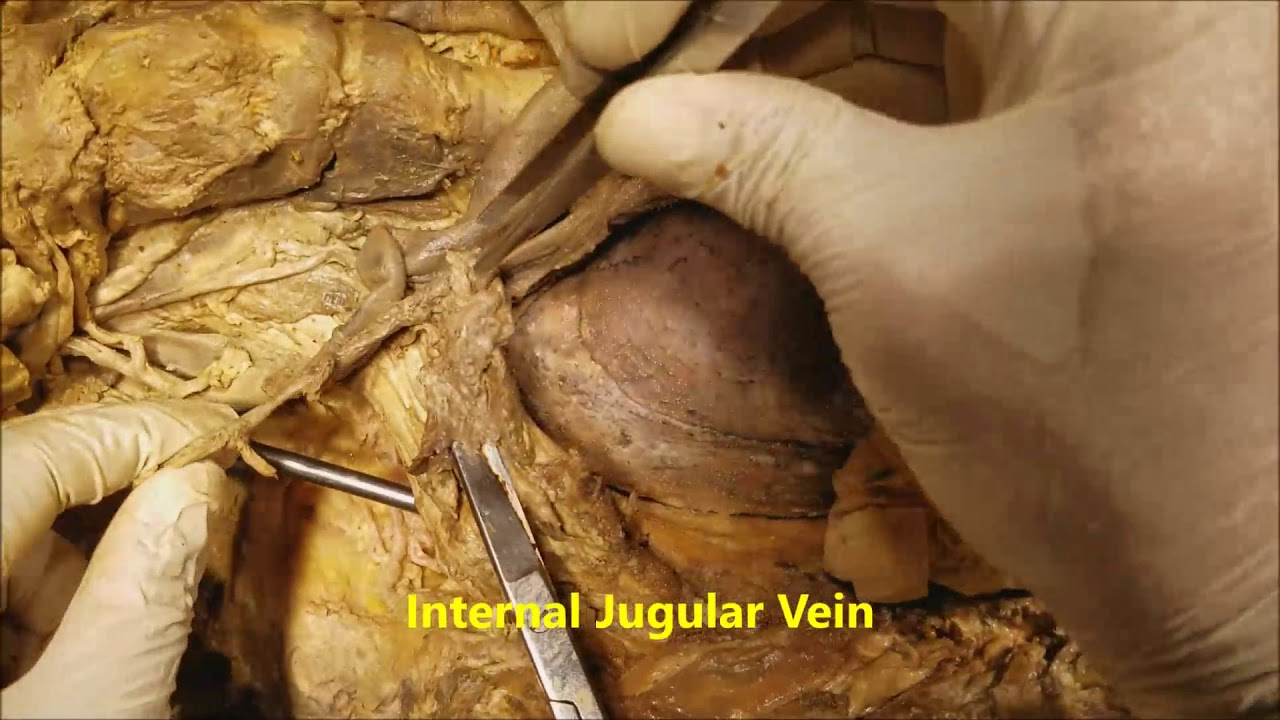 Carotid-Jugular-Vagus-Recurrent Laryngeal Nerve Surgical Dissection ...