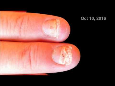 Fingernail growth time lapse