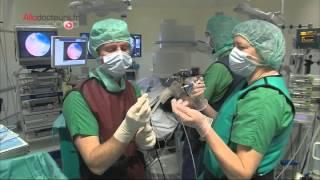 Emphysème pulmonaire : quand la chirurgie s'impose - Allô Docteurs