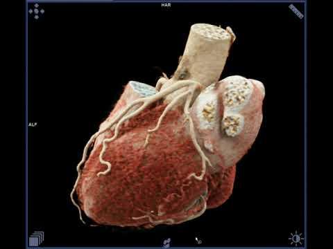 MWH Medical   HEART