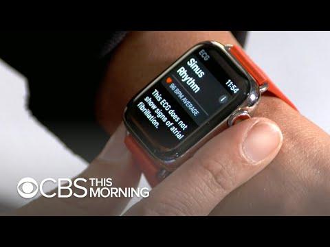 Apple Watch rolling