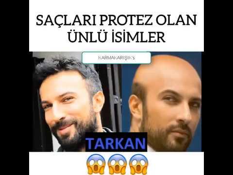 Saclari Protez Olan Unluler Nuri Alco Murat Boz Tarkan Kemal