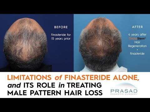 Why Finasteride is Limited in Thickening Thinning Hair; and Getting Thicker Hair Beyond Finasteride