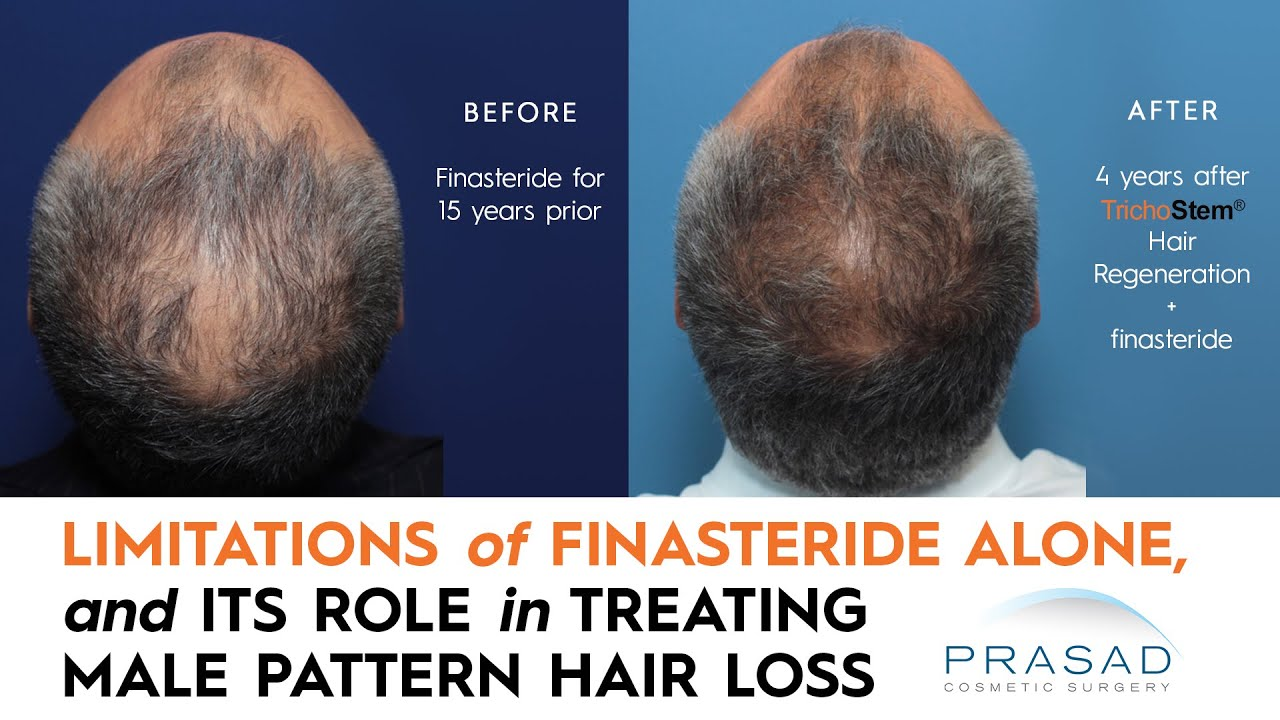 Why Finasteride Is Limited In Thickening Thinning Hair And Getting Thicker Hair Beyond Finasteride Youtube