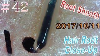 Hair Root / Root Sheath Close Up #42【 No Loss Root Sheath】