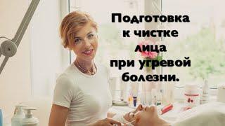 Подготовка лица к чистке лица при угревой болезни.
