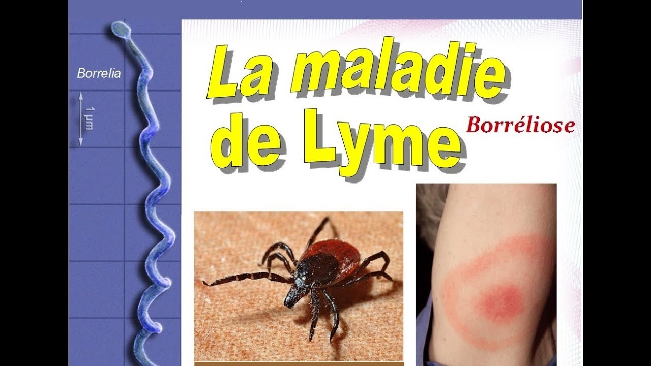 maladie lyme sympt mes diagnostic traitement youtube. Black Bedroom Furniture Sets. Home Design Ideas