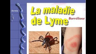 Maladie lyme: Symptômes Diagnostic Traitement