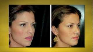 Dr. Jason Diamond - Rhinoplasty