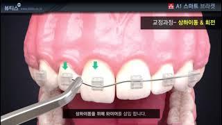 A1 치아 교정용 브라켓 상하이동 & 회전 교정…