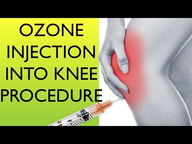 (Re-upload) How Practitioners do Ozone Joint injections into knee | Alternative Prolo therapy BACK