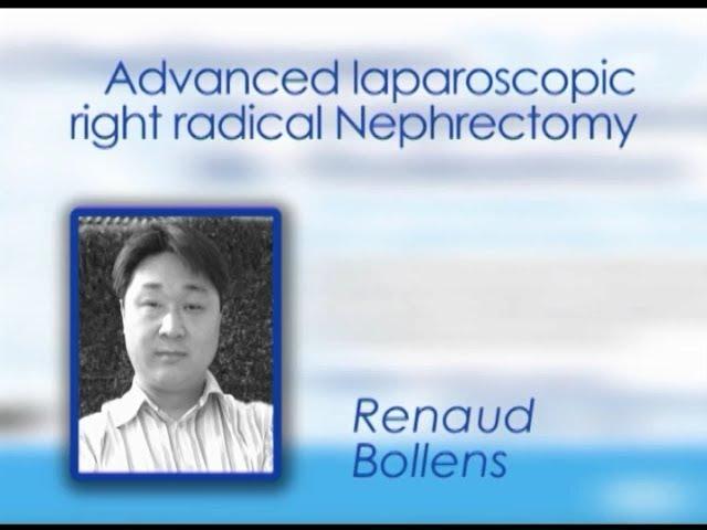 CILR 2012 - Renaud Bollens - Advanced laparoscopic right radical nephrectomy