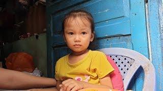 Câu chuyện cảm động về bé gái thiếu máu và cơ duyên đến với bé gái ung thư