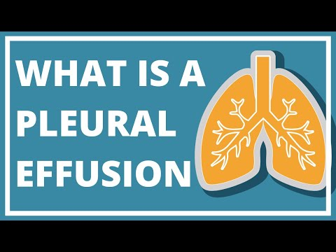 pleural-effusion- -what-does-it-(truly)-mean?