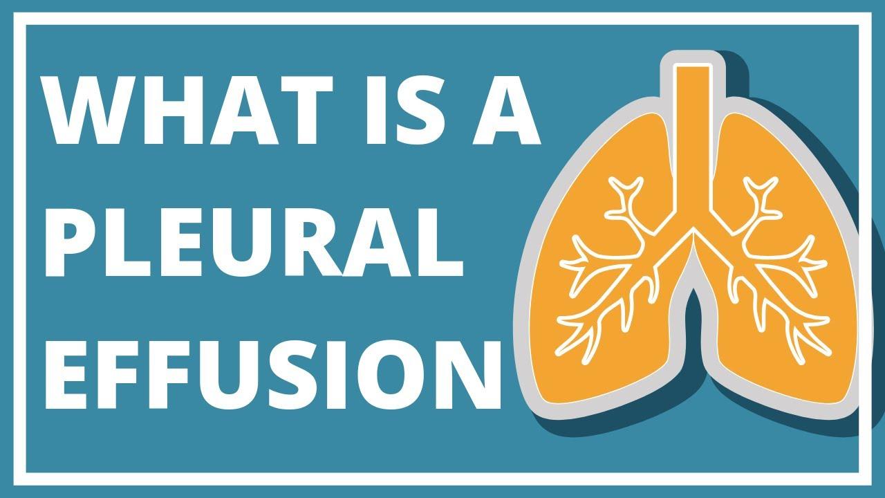Pleural Effusion & Asbestos: Causes, Symptoms & Treatment