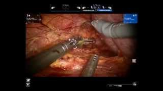 Robotic nephropexy: sliding clip technique Challacombe