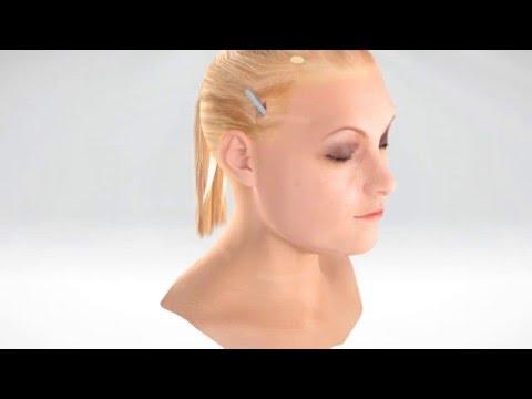 Liposuction & Facelift - Animation 3D