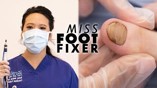 Ripping Out Toenails Is My Dream Job | MISS FOOT FIXER