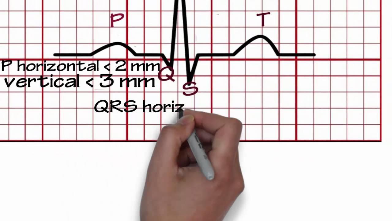 ECG Reading 1