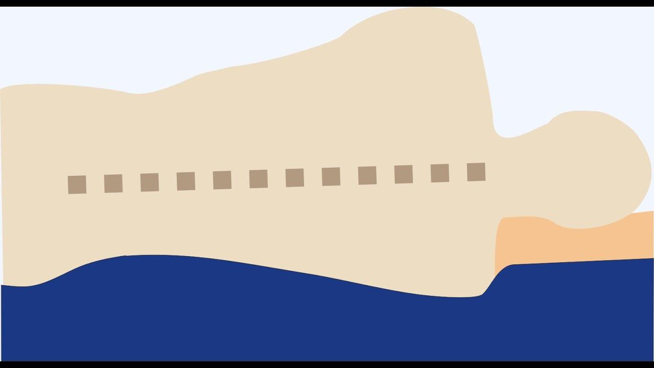 Die Richtige Matratze Und Das Passende Bettsystem Finden Homepage