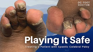 Playing It Safe: Trimming Fungal Toenails For A Patient With Cerebral Palsy