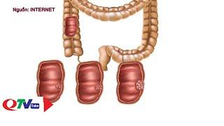 Tầm soát sớm và điều trị ung thư đại tràng | QTV
