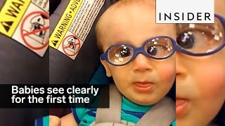 These babies are seeing clearly for the first time thumbnail