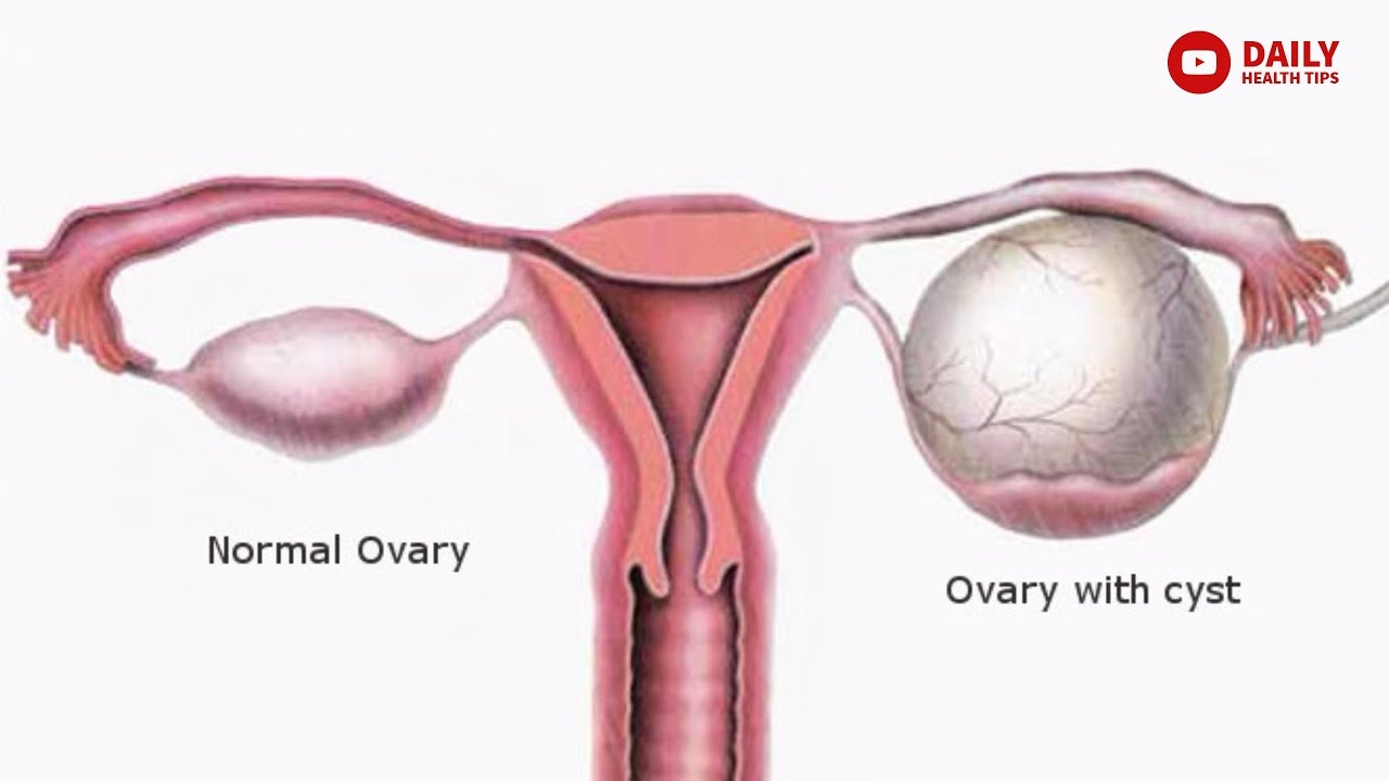 8 घरेलू उपचार ओवरी में होने वाली सिस्ट के लिए   Home Remedies for Ovary  cysts (PCOS) In Hindi